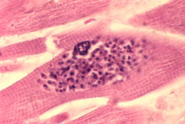 toxoplasma gondi infection in mice essay Toxoplasmosis is a disease caused by the parasite toxoplasma gondii more than 60 million people in the us have the parasite most of them don't get sick.
