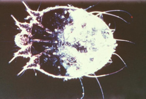 scabies, itch mite