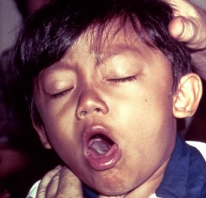 Child suffering from diphtheria   Image/CDC