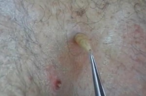 A botfly being extracted from a man's back.Image/YouTube Video Screen Shot
