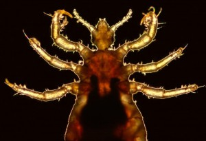 Body Louse Image/CDC