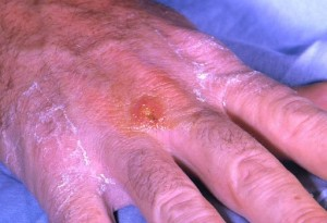 Tularemia is caused by the bacterium, Francisella tularensis. Symptoms vary depending on how the person was exposed to the disease, and as is shown here, can include skin ulcers. Credits:   CDC/ Dr. Brachman