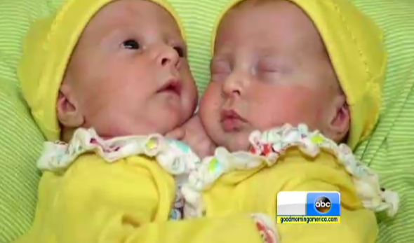 Separated Conjoined Twins Allison And Amelia Tucker