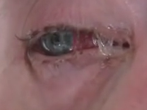 Bad case of pink eye Image/Video Screen Shot