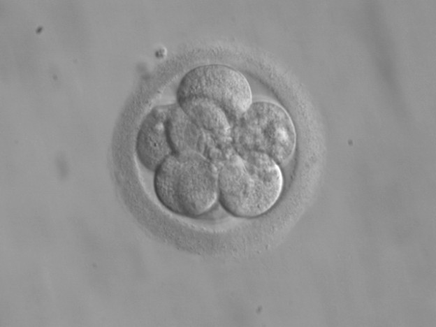 Human embryo, 8 cells on day 3 photo: ekem, Courtesy: RWJMS IVF Program via wikimedia commons