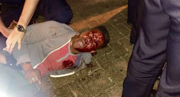 martese_johnson on the ground bloody face