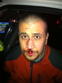 George Zimmerman bloody face