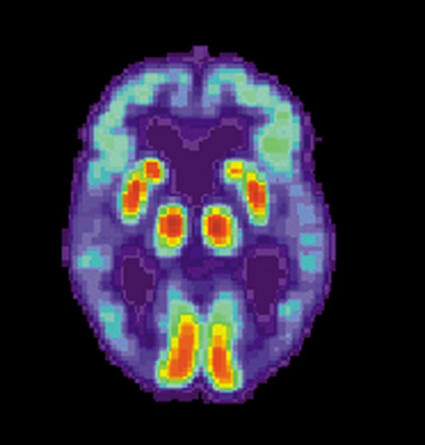 photo US National Institute on Aging, Alzheimer's Disease Education and Referral Center