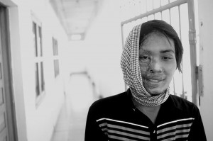 Photo of a similar acid attack victim from Cambodia Photo/sand paper via wikimedia commons