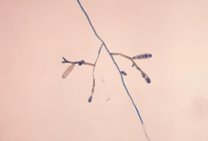 Photomicrograph showing fine branching tubes of Exserohilum rostratum/ CDC