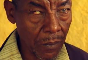 Trachoma   Carter Center Video Screen Shot