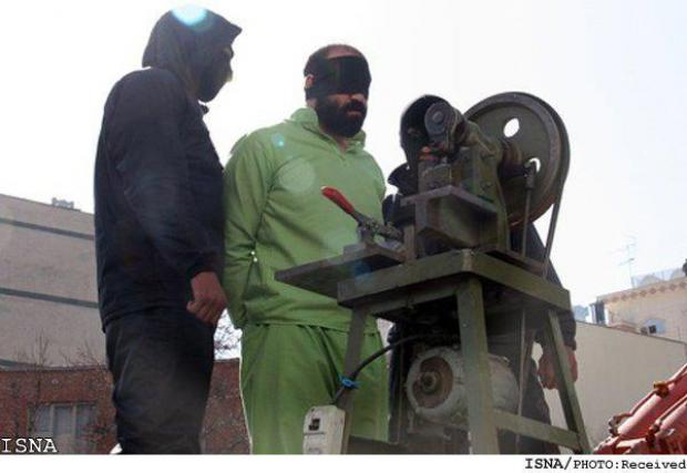 Iran-Finger-Amputation device photo