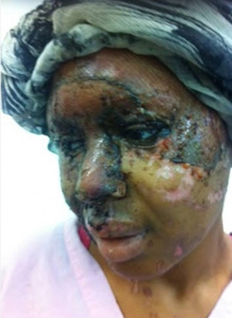 Naomi Oni after the acid attack, photo supplied