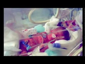 photo of the newborn