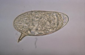 Schistosoma mansoni egg Image/CDC