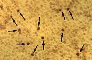 This McCoy cell monolayer micrograph reveals a number of intracellular C. trachomatis inclusion bodies Image/CDC