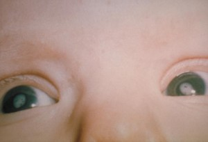 This photograph shows the cataracts in a child's eyes due to Congenital Rubella Syndrome (CRS). Rubella is a viral disease that can affect susceptible persons of any age. Although generally a mild rash, if contracted in early pregnancy, there can be a high rate of fetal wastage or birth defects, known as Congenital Rubella Syndrome (CRS). Image/CDC
