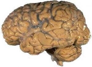 Human brain Image/NIH