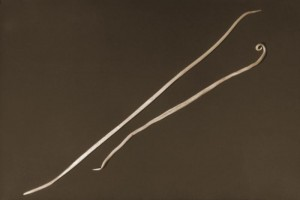 Two Ascaris lumbricoides nematods, i.e., roundworms. The larger of the two was the female of the species, while the normally smaller male was on the right. Image/CDC