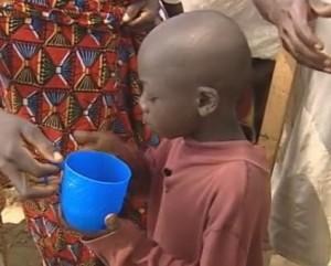 Child taking Mectizan Image/Video Screen Shot