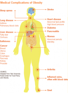 Medical complications of Obesity Image/CDC