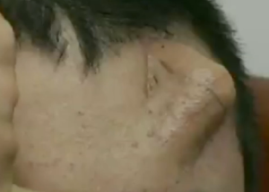 forehead nose Chinese man transplant