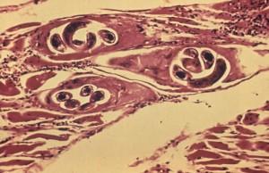 Trichinella Image/CDC