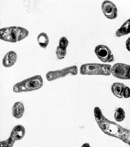 Bacillus anthracis under TEM/CDC