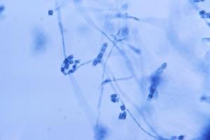 Coccidioides immitis Image/CDC