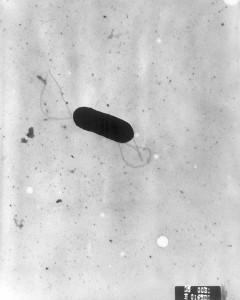Listeria Image/CDC
