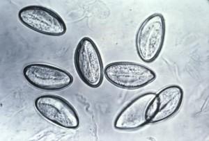 E. vermicularis image/CDC