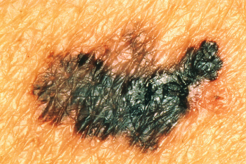 Melanoma with Color Differences Image/National Cancer Institute
