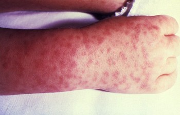 Characteristic spotted rash of Rocky Mountain spotted fever/CDC