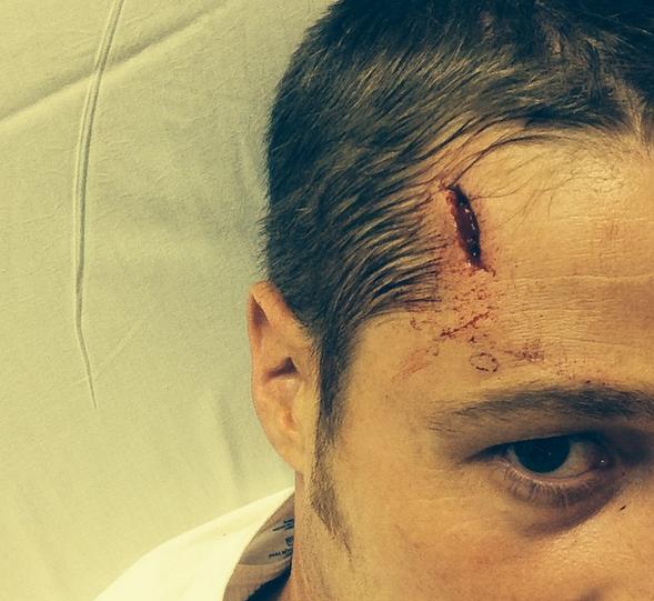 Ben McKenzie shares his head injury with fans via Instagram