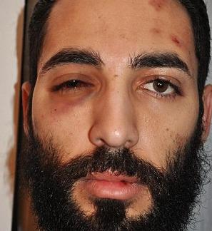 Combo, beaten and battered  photo/ Twitter
