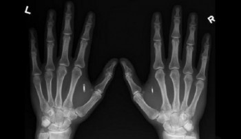 microchip-in-hands-xray