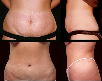 Abdominoplasty  photo/ Karrax via wikimedia commons
