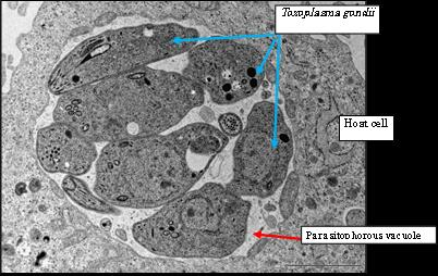 This is a microscope image of Toxoplasma gondii inside an infected cell/Masahiro Yamamoto